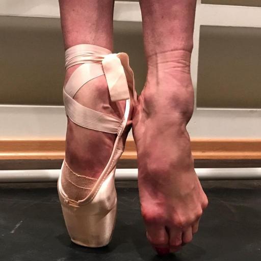 Анастасия Волочкова шокировала изуродованными ногами