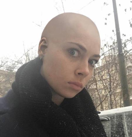Анастасия Самбурская побрилась налысо