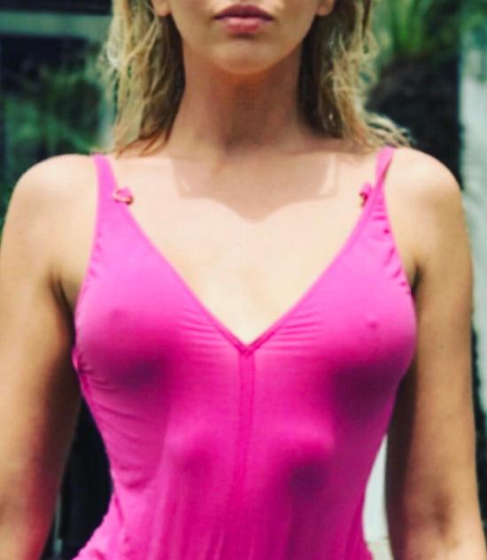Оля Полякова избавилась от силиконовой груди