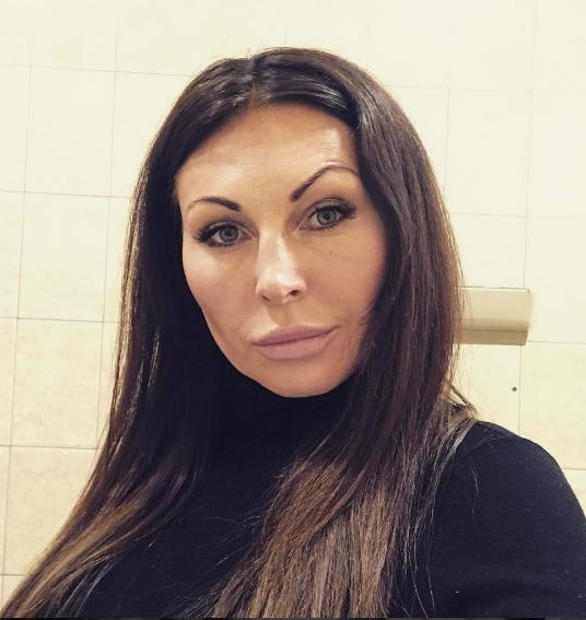 Наталья Бочкарева изуродовала себя пластикой