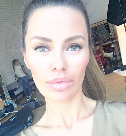 Виктория Боня снова увеличила губы