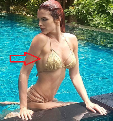 У экс-«ВИА Гры» проблемы с силиконовой грудью