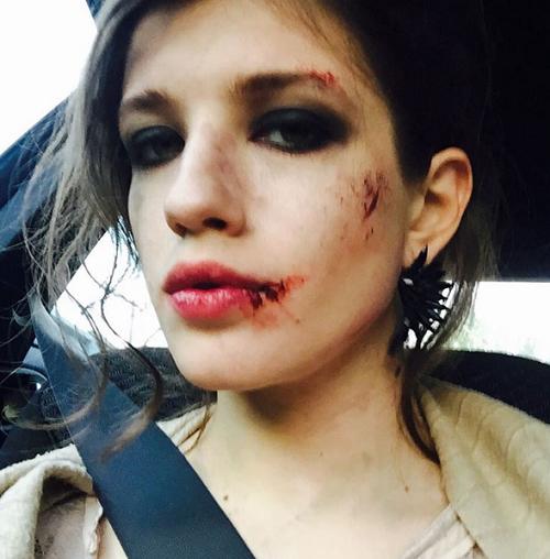 Анна Чиповская испугала разбитым лицом